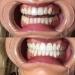tanden bleken 60 minuten